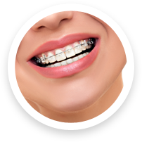 braces-faq-icon