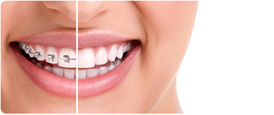 Braces Or Invisalign For My Teen How Your West Palm Beach Area Orthodontist Can Help You Decide
